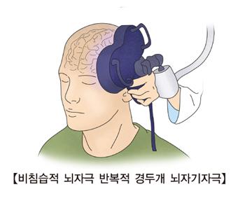 비침습적 뇌자극 반복적 경두개 뇌자기자극