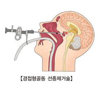 경접형골등 선종제거술 그림 예시