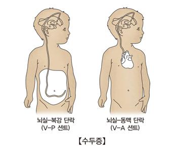 수두증- 뇌실-복강단락(V-P션트), 뇌실-동맥단락(V-A션트) 그림 예시