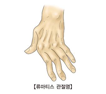 류마티스 관전염으로 인해 손가락이 휘어있는 사진 예시
