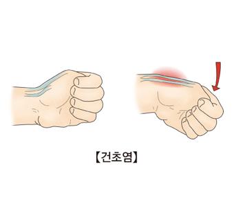 손목을 움직일때 건이 늘어나 통증을 유발시키는 사진 예시