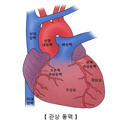 상대정맥 상행대동맥 폐동맥 하대정맥 오른쪽 관상동맥 우심실 왼쪽 관상동맥 좌심실의 위치와 관상동맥의 예시