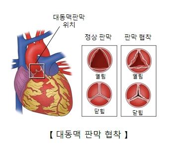 대동맥 판막 위치 및 정상판막 과 판막협착의 열림 및 닫힘상태의 예시