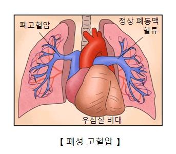폐 고혈압 정상폐동맥 혈류 이심실 비대 위치및 폐성 고혈압의 예시