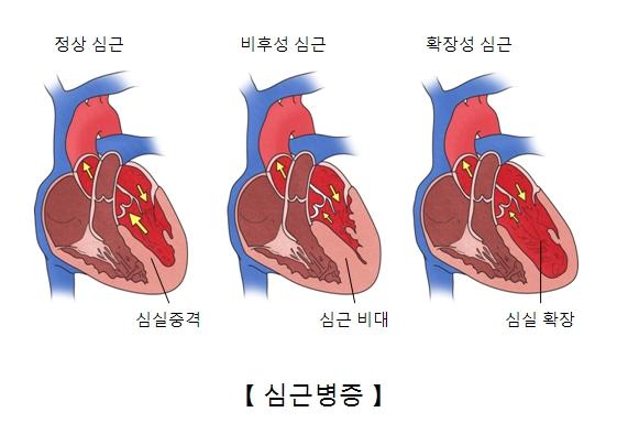 정상심근의 심실중격 비후성심근의 심근비대 확장성심근의 심실확장의 예시및 심근병증의 예