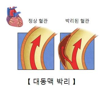 정상혈관과 박리된 혈관의 차이
