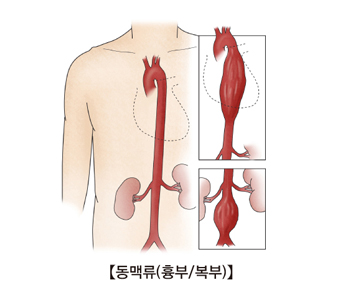 흉부및복부 동맥류의 예시