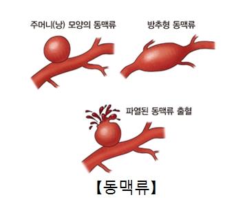 주머니모양의 동맥류 방추형 동맥류 파열된 동맥류 출혈 이미지