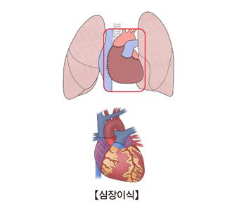 심장이식의 예시