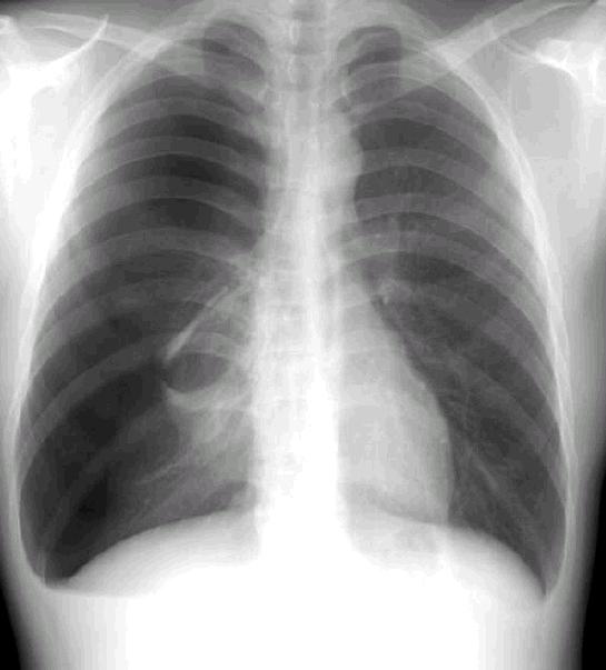 가슴 x-ray 이미지