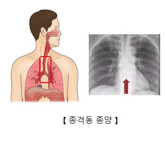 종격동 종양 x-ray이미지