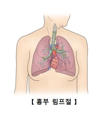 흉부 림프절의 예시