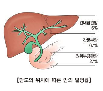 간내담관암 6% 간문부암 67% 원위부담관암 27% 담도 위치에 따른 암 발병률 예시