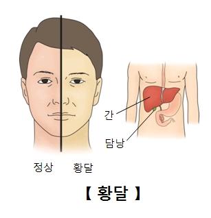 정상상태와 활달상태 비교 예시 및 간 과 담낭의 위치