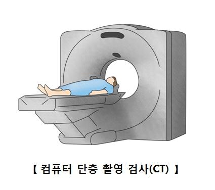 컴퓨터 단층 찰영 검사(CT)를 받구 있는 남성