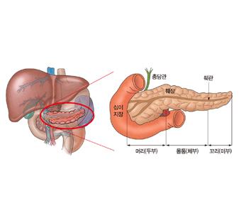십이지장 총담관 췌장 췌관 머리(두부) 몸통(체부) 꼬리(마부)의 위치를 표시한 예시및 췌장의 위치