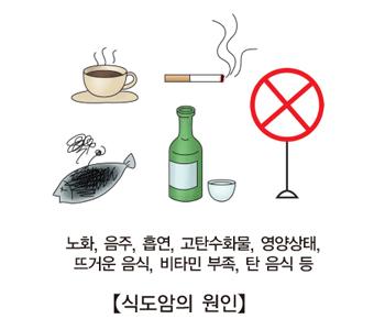노화 음주 흡연 고탄수화물 영양상태 뜨거운음식 비타민부족 탄음식등 식도암의 원인 예시