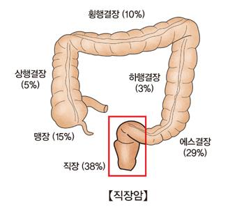 황행결장(10%) 하행결장(3%) 에스결장(29%) 직장(38%) 맹장(15%) 상행결장(5%)등 대장암이 발생하는 부위의 예시