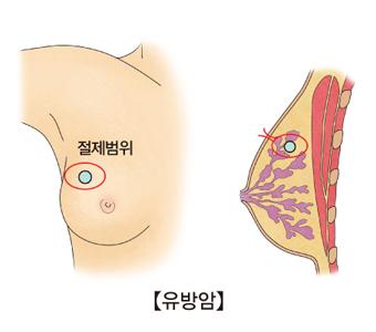 유방암의 절제범위와 측면에서 바라본 절제범위 위치의 예시