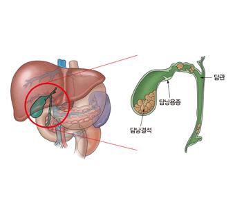 담낭결석 담낭용종 담관의 위치예시