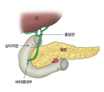 간 십이지장 총담관 췌장 바터팽대부의 구조 예시