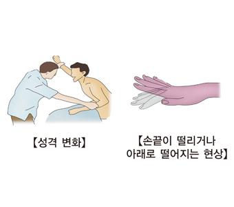 성격변화 손끝이 떨리거나 아래로 떨어지는 현상등 급성 간부전의 특성 예시