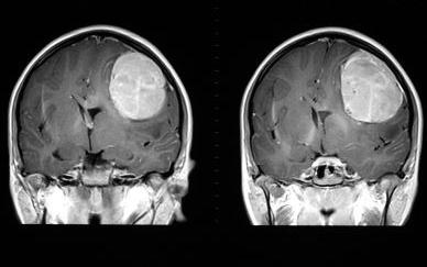 양성 뇌종양의 예시