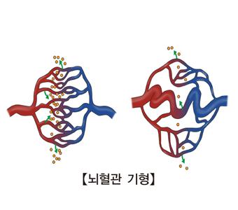 뇌혈관 기형  그림 예시