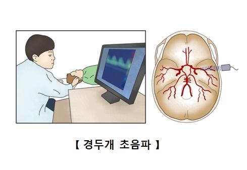 경두개 초음파를 받고 있는 남성과 뇌의 단면도