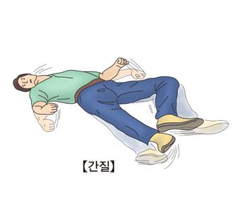 간질-간질발작을 일으킨 남성