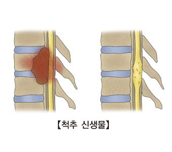척추신생물 사진 예시