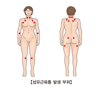 섬유근육통 발생 부위 예시