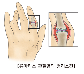 류마티스 관절염 병리소견