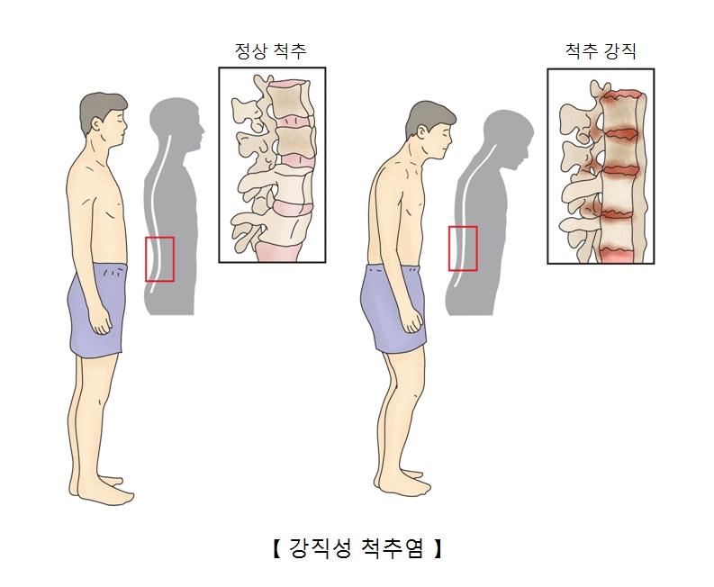 정상인의 척추와 강직성척추염에 걸인 사람의 척수 사진 예시