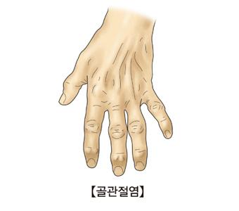 골관절염에 걸린 손