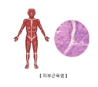 피부근육염의 예시