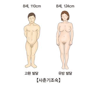 남성의 경우 8세 110cm 고환발달 및 여성의 경우 8세 124cm 유방발달등 사춘기 조숙의 대한 예시