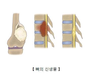 뼈의 신생물 예시