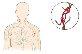 전신에 분포된 림프관과 림프절 및 림프종의 예시