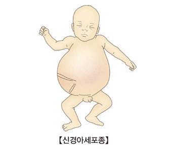 신경아세포종에 걸린 유아의 예시