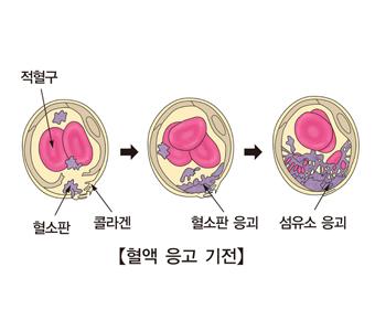 적혈구 혈소판 콜라겐의 혈소판 응괴 섬유소 응괴등 혈액응고 기전이 발생되는 예시