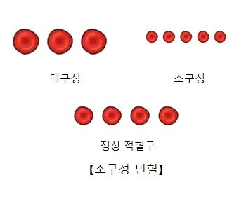소구성 빈혈을 설명하는 대구성, 소구성, 정상 적혈구 예시