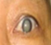 실제 백내장에 걸린 노인의 눈