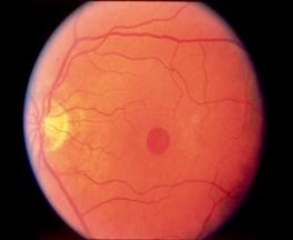 실제 망막의 중심부인 황반부의 중심에 망막조직의 결손이된 사진