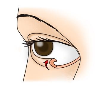 눈꺼플이 눈으로 말려들어가 속눈썹이 각막에지속적으로 자극을 주고있음