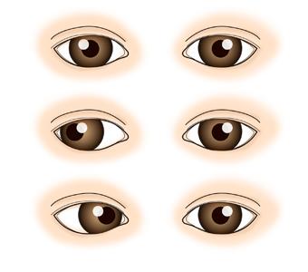 정상인의 눈동자와 사시가 발생된 눈동자 사진예시