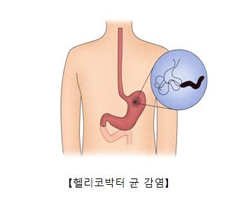 헬리코박터 균 감염의 예시