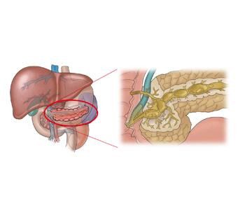 급성 췌장염의 예시
