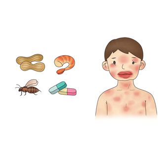 땅콩,벌,알약,해산물 알레르기반응을 일으켜 전신에 소양증을 동반한 발진을 일으킨 아이
