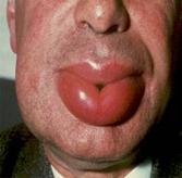 혈관부종에 걸린 입술의 예시